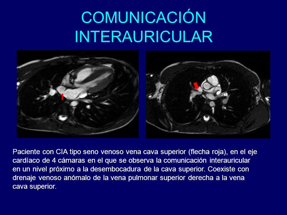 COMUNICACIÓN INTERAURICULAR Paciente con CIA tipo seno venoso vena cava superior (flecha roja), en el eje cardíaco de 4 cámaras en el que se observa l