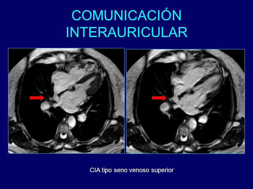 COMUNICACIÓN INTERAURICULAR CIA tipo seno venoso superior