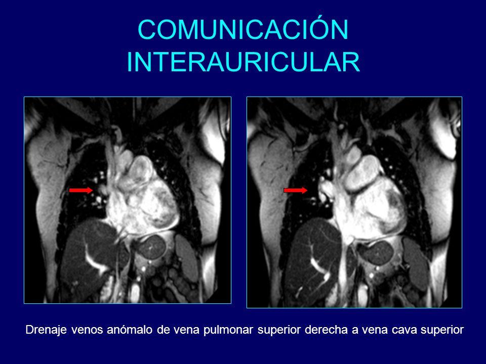 Drenaje venos anómalo de vena pulmonar superior derecha a vena cava superior