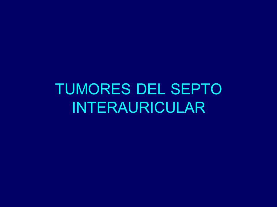 TUMORES DEL SEPTO INTERAURICULAR