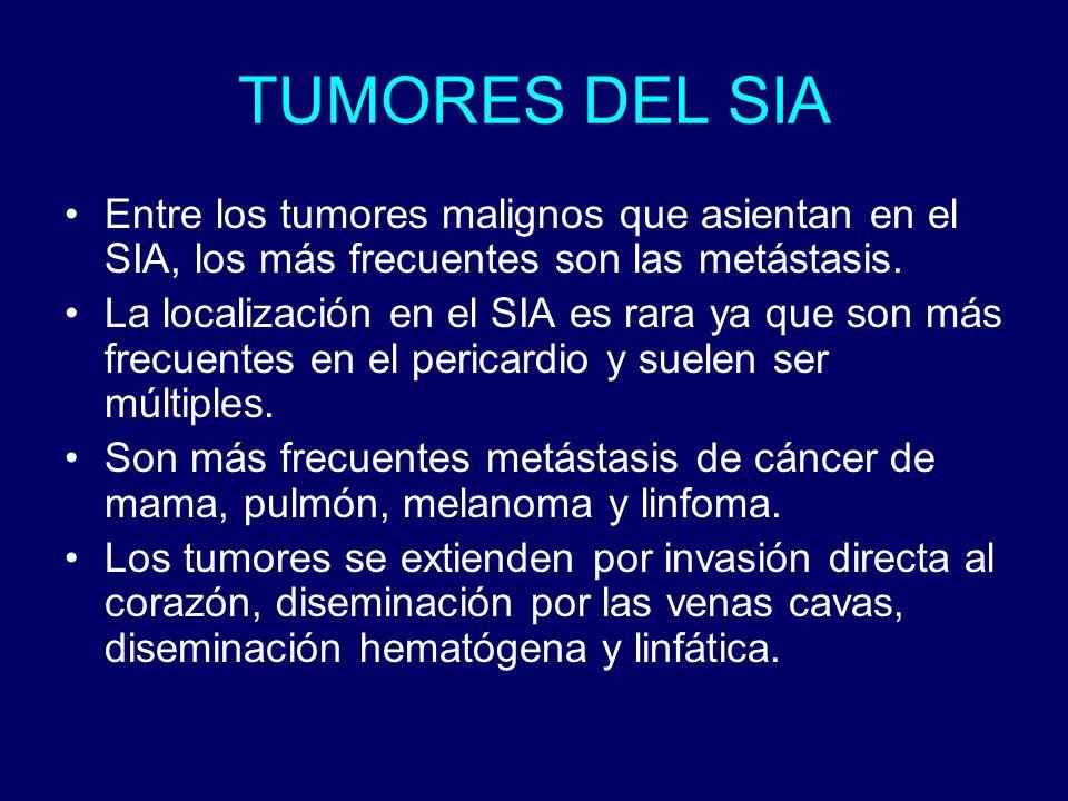 TUMORES DEL SIA Entre los tumores malignos que asientan en el SIA, los más frecuentes son las metástasis. La localización en el SIA es rara ya que son