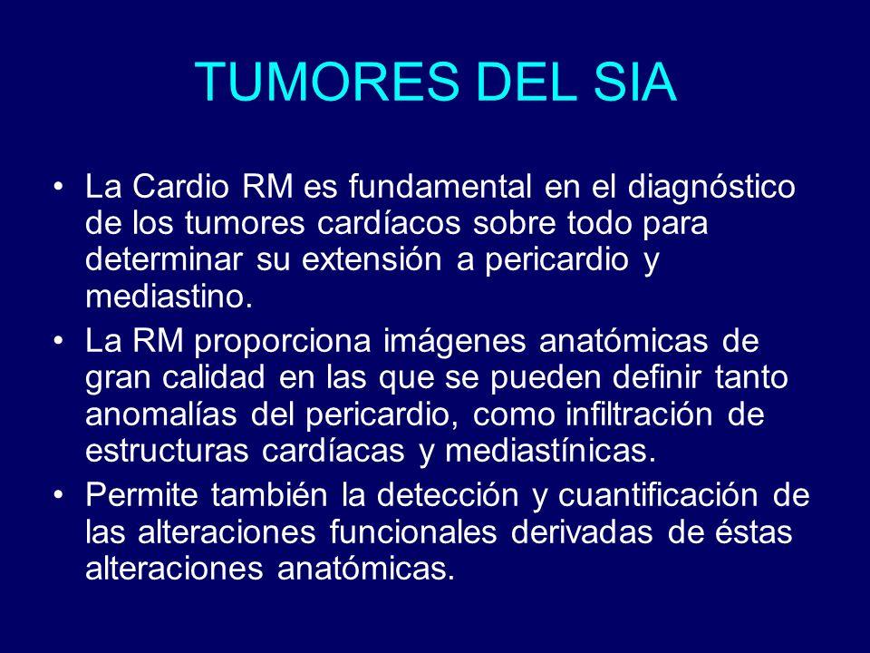 TUMORES DEL SIA La Cardio RM es fundamental en el diagnóstico de los tumores cardíacos sobre todo para determinar su extensión a pericardio y mediasti