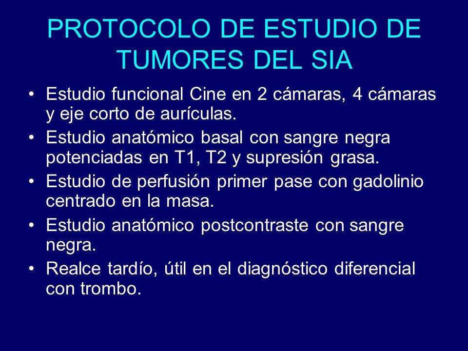 PROTOCOLO DE ESTUDIO DE TUMORES DEL SIA Estudio funcional Cine en 2 cámaras, 4 cámaras y eje corto de aurículas. Estudio anatómico basal con sangre ne
