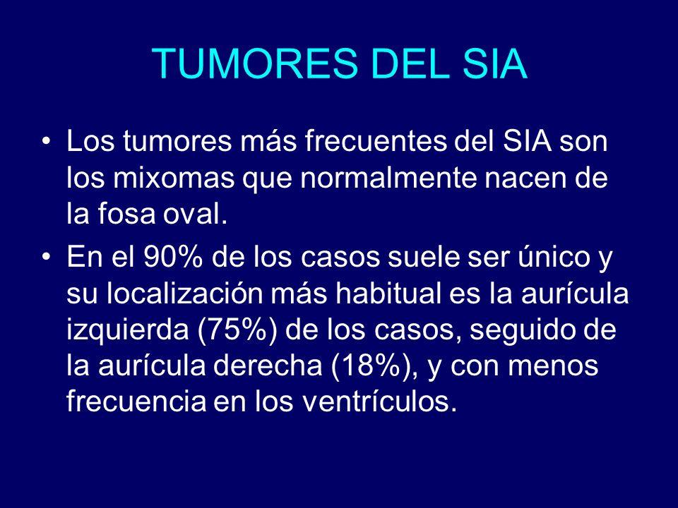 TUMORES DEL SIA Los tumores más frecuentes del SIA son los mixomas que normalmente nacen de la fosa oval. En el 90% de los casos suele ser único y su