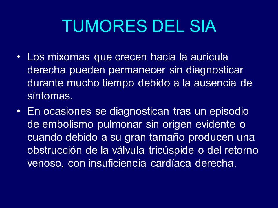 TUMORES DEL SIA Los mixomas que crecen hacia la aurícula derecha pueden permanecer sin diagnosticar durante mucho tiempo debido a la ausencia de sínto