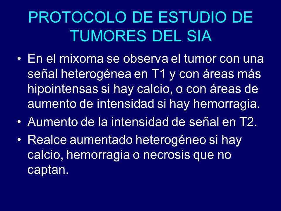 PROTOCOLO DE ESTUDIO DE TUMORES DEL SIA En el mixoma se observa el tumor con una señal heterogénea en T1 y con áreas más hipointensas si hay calcio, o