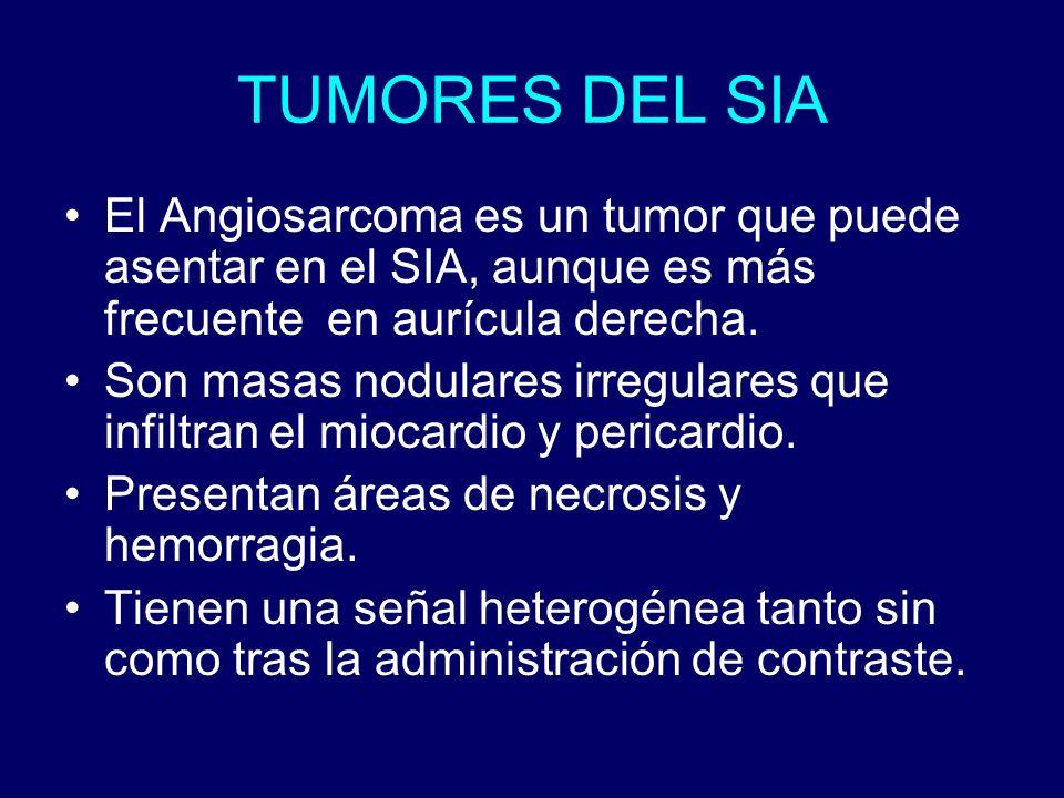 TUMORES DEL SIA El Angiosarcoma es un tumor que puede asentar en el SIA, aunque es más frecuente en aurícula derecha. Son masas nodulares irregulares