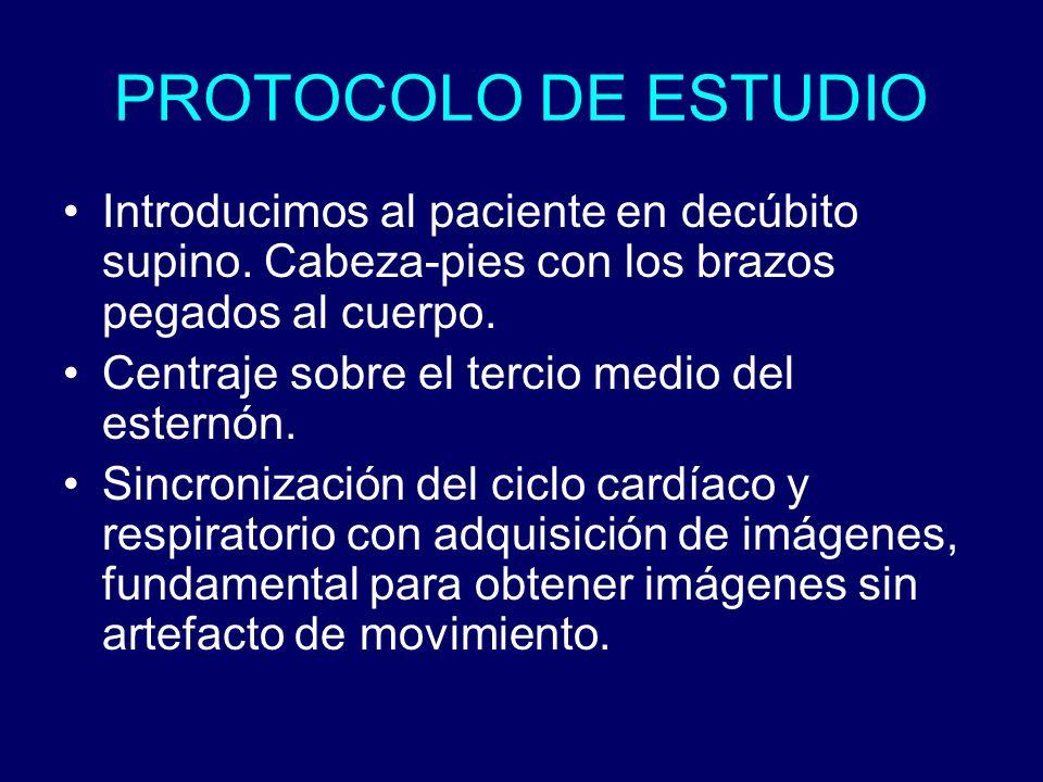 PROTOCOLO DE ESTUDIO Introducimos al paciente en decúbito supino. Cabeza-pies con los brazos pegados al cuerpo. Centraje sobre el tercio medio del est