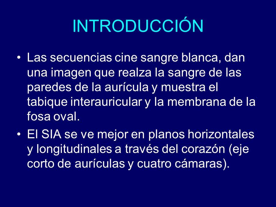 INTRODUCCIÓN Las secuencias cine sangre blanca, dan una imagen que realza la sangre de las paredes de la aurícula y muestra el tabique interauricular