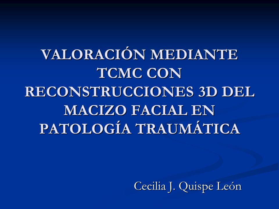 VALORACIÓN MEDIANTE TCMC CON RECONSTRUCCIONES 3D DEL MACIZO FACIAL EN PATOLOGÍA TRAUMÁTICA Cecilia J. Quispe León