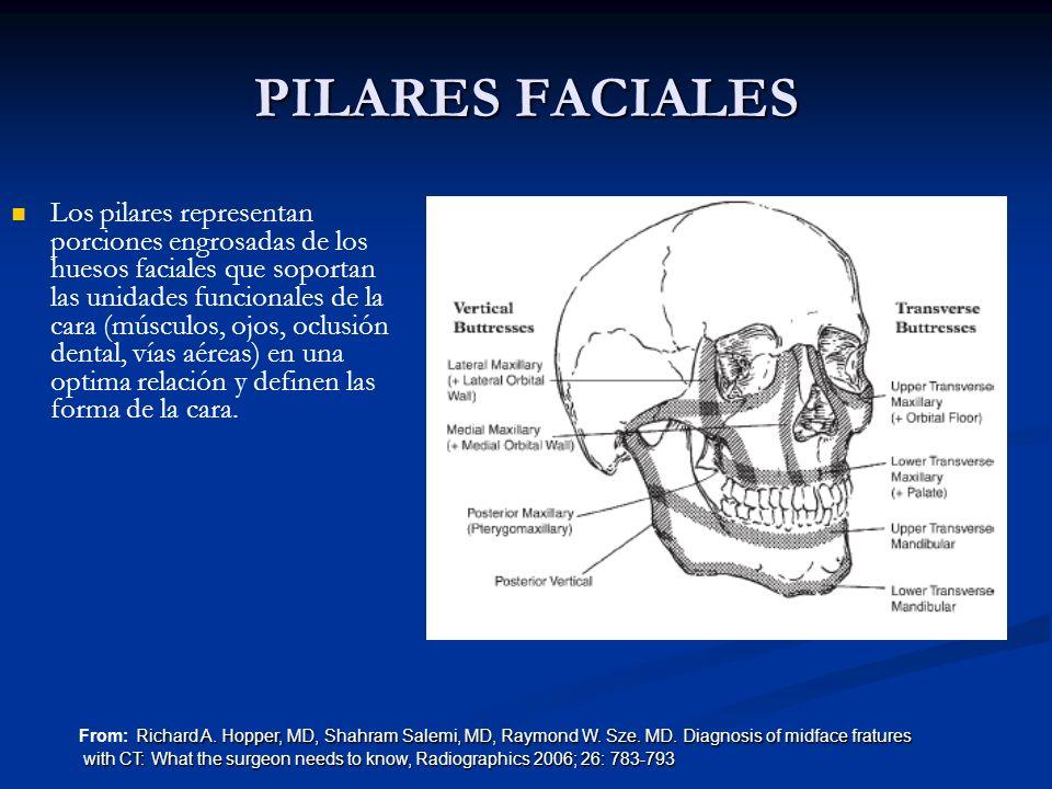 PILARES FACIALES Los pilares representan porciones engrosadas de los huesos faciales que soportan las unidades funcionales de la cara (músculos, ojos,
