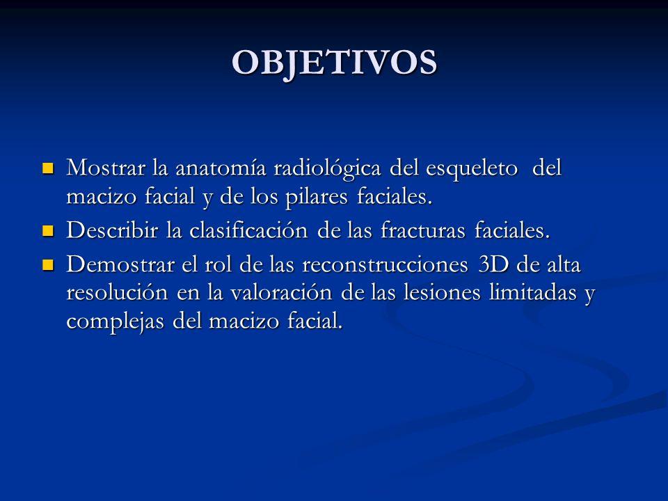 OBJETIVOS Mostrar la anatomía radiológica del esqueleto del macizo facial y de los pilares faciales. Mostrar la anatomía radiológica del esqueleto del