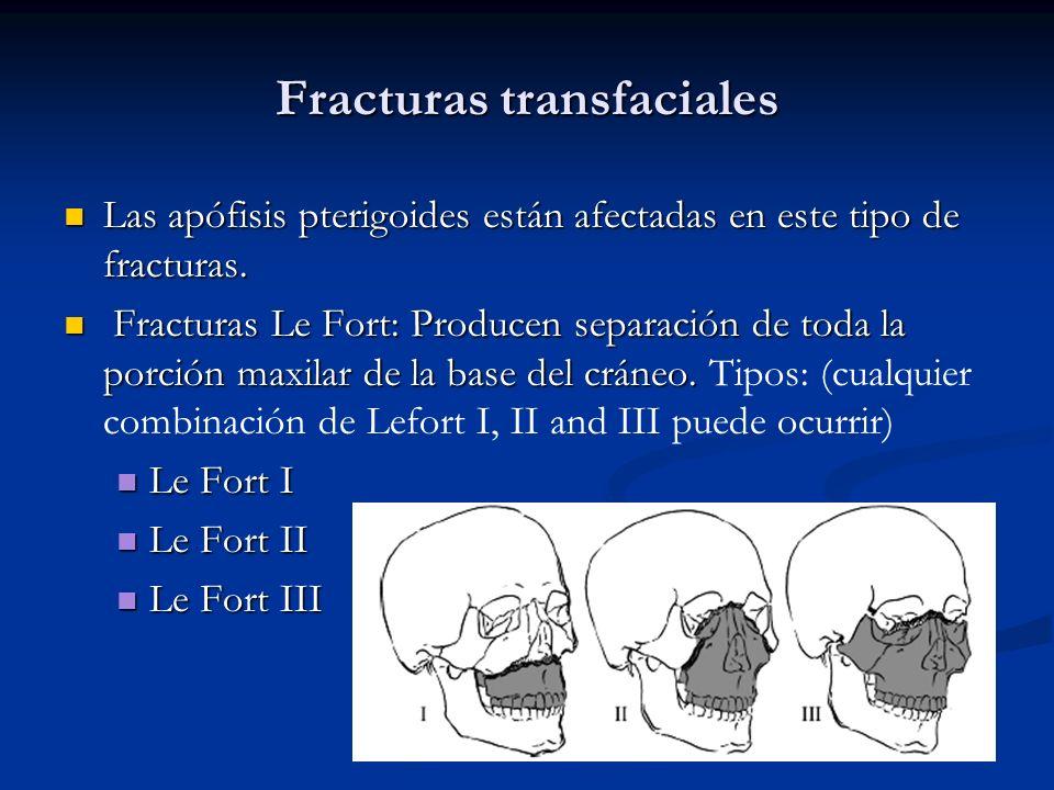 Fracturas transfaciales Las apófisis pterigoides están afectadas en este tipo de fracturas. Las apófisis pterigoides están afectadas en este tipo de f