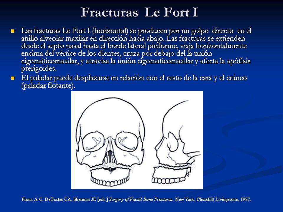 Fracturas Le Fort I Las fracturas Le Fort I (horizontal) se producen por un golpe directo en el anillo alveolar maxilar en dirección hacia abajo. Las