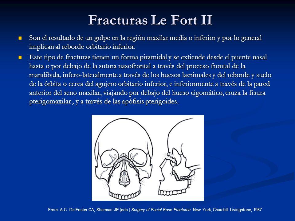 Fracturas Le Fort II Son el resultado de un golpe en la región maxilar media o inferior y por lo general implican al reborde orbitario inferior. Son e