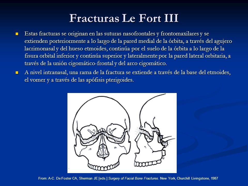 Fracturas Le Fort III Estas fracturas se originan en las suturas nasofrontales y frontomaxilares y se extienden porteriormente a lo largo de la pared