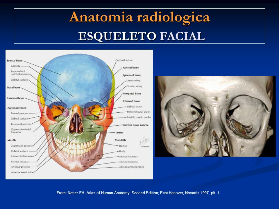 Anatomia radiologica ESQUELETO FACIAL From: Netter FH.