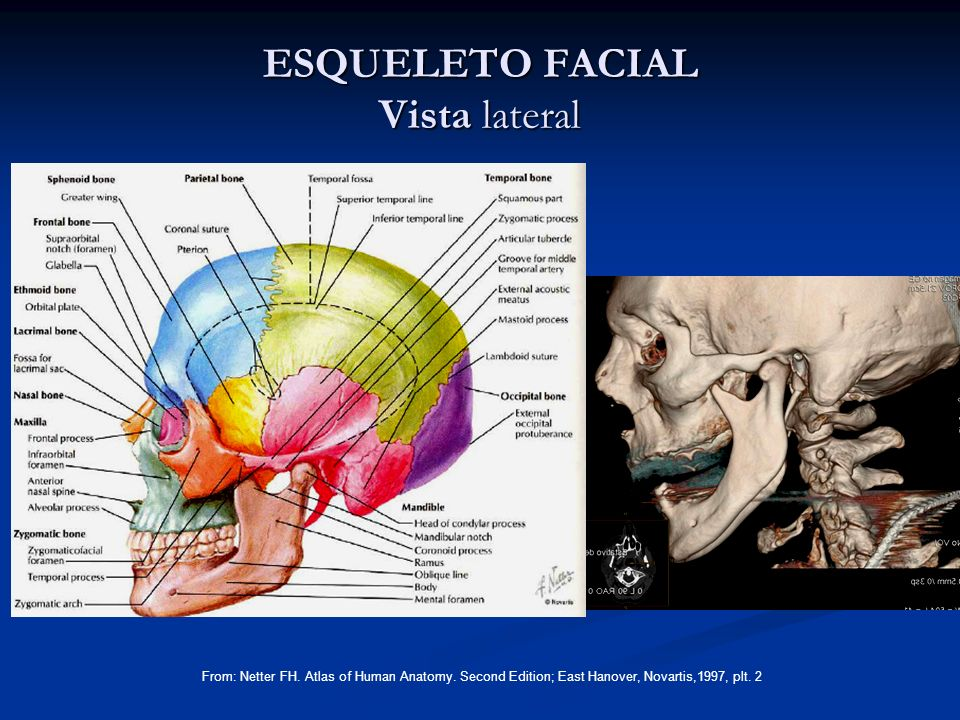 SUELO DE LA ORBITA From: Netter FH.Atlas of Human Anatomy.