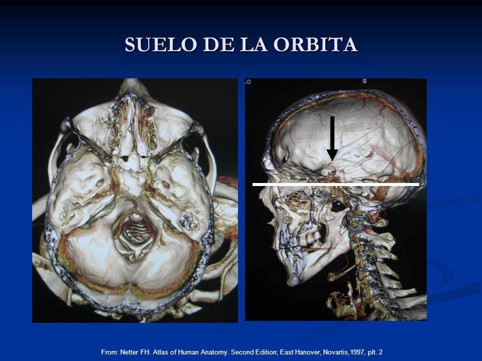 SUELO DE LA ORBITA From: Netter FH. Atlas of Human Anatomy. Second Edition; East Hanover, Novartis,1997, plt. 2
