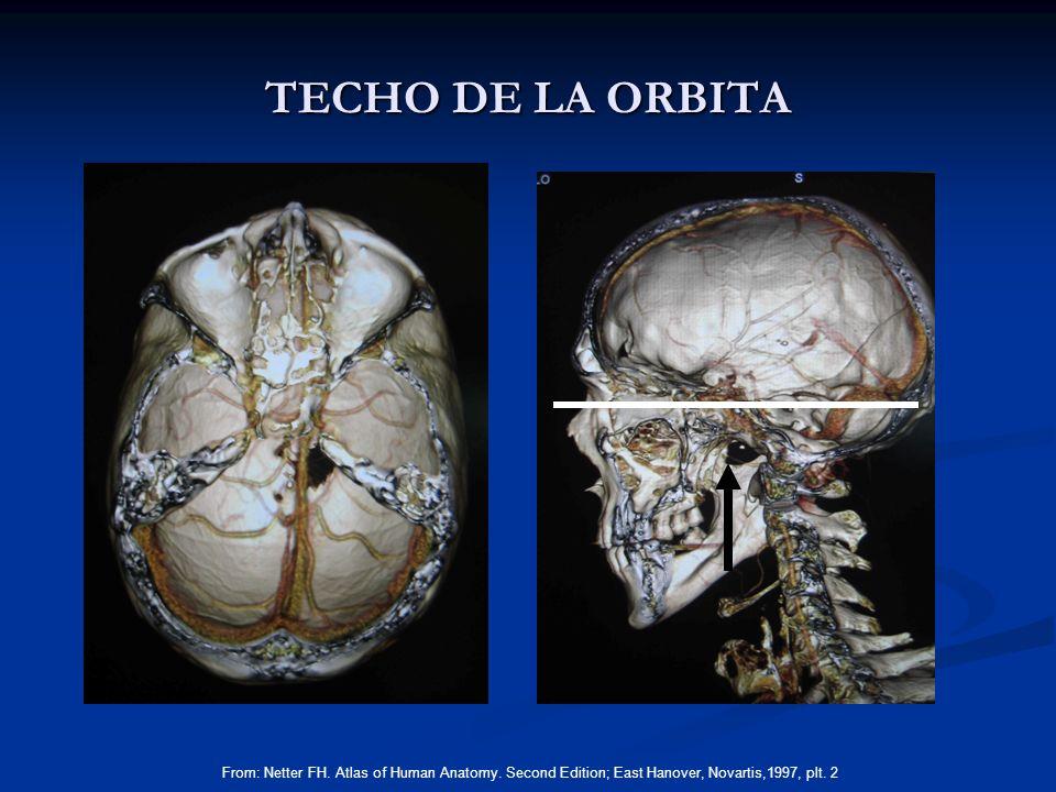 TECHO DE LA ORBITA From: Netter FH. Atlas of Human Anatomy. Second Edition; East Hanover, Novartis,1997, plt. 2