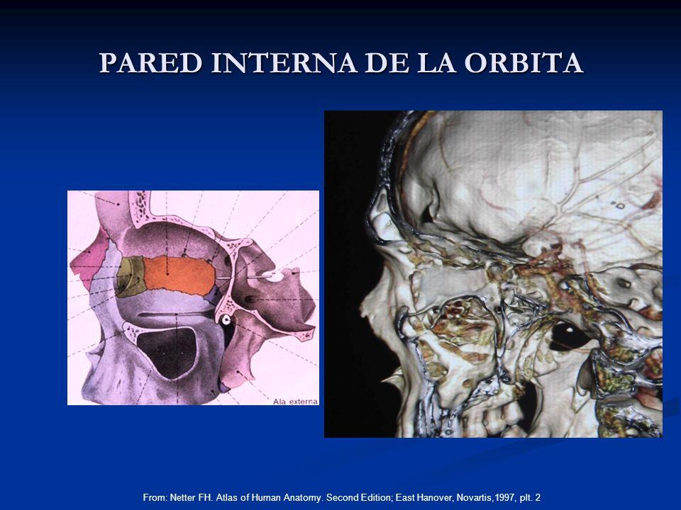 PARED INTERNA DE LA ORBITA From: Netter FH. Atlas of Human Anatomy. Second Edition; East Hanover, Novartis,1997, plt. 2