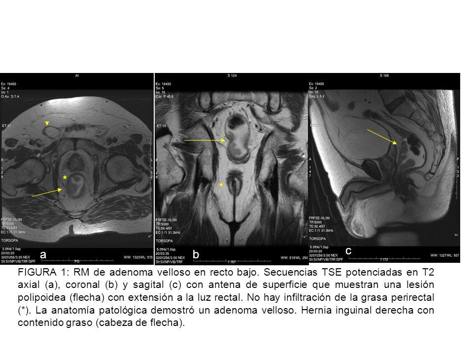 Figura 12: Imagen sagital (a) y axial (b) TSE T2 que demuestra una engrosamiento tumoral que invade la grasa perirrectal.