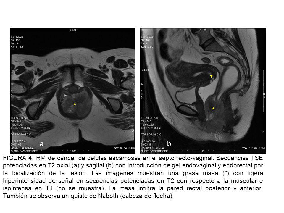 FIGURA 5: Anatomía rectal en la RM coronal (a), sagital (b) y axial (c) en secuencias TSE potenciadas en T2 con antena de superficie.