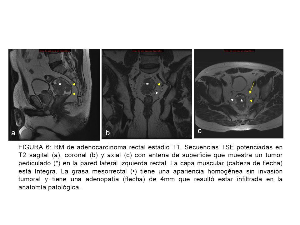 FIGURA 7: RM de adenocarcinoma rectal estadio T2.