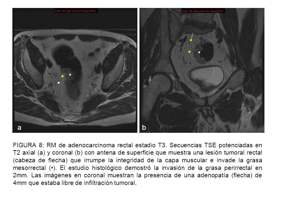 FIGURA 9: RM de adenocarcinoma rectal estadio T3 avanzado.
