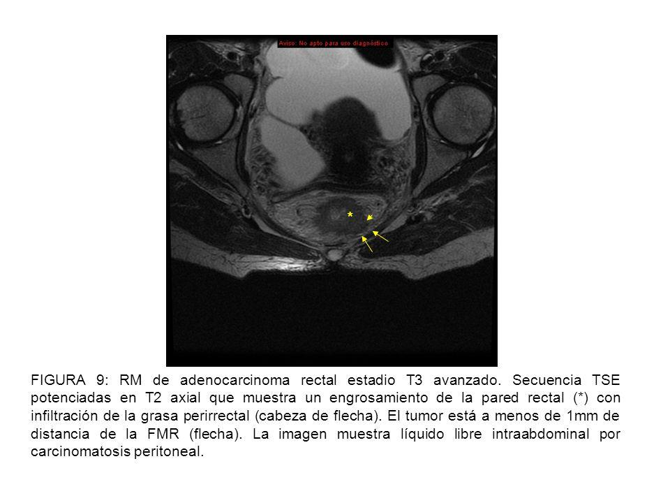 FIGURA 10: RM de adenocarcinoma rectal estadio T4.