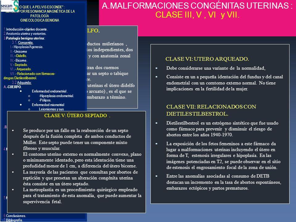 A.MALFORMACIONES CONGÉNITAS UTERINAS : CLASE III, V, VI y VII. CLASE VI: UTERO ARQUEADO. Debe considerarse una variante de la normalidad, Consiste en