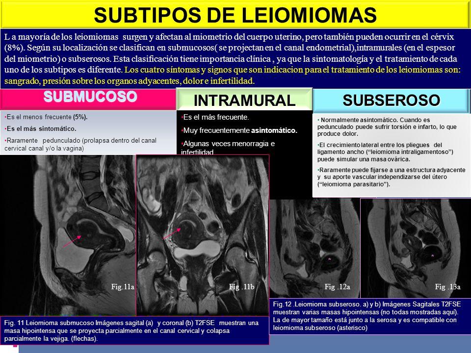 SUBMUCOSO SUBSEROSO * * SUBTIPOS DE LEIOMIOMAS L a mayoría de los leiomiomas surgen y afectan al miometrio del cuerpo uterino, pero también pueden ocu