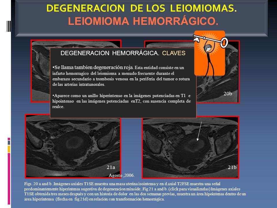 Junio,2006 DEGENERACION DE LOS LEIOMIOMAS. LEIOMIOMA HEMORRÁGICO. Figs. 20 a and b.Imágenes axiales T1SE muestra una masa uterina isointensa y en d.ax