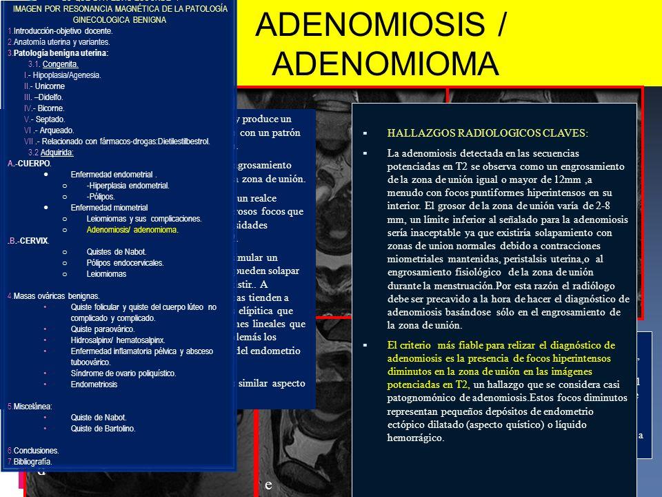 La adenomiosis consiste en la presencia de estroma y glándulas endometriales dentro del miometrio.Ocurre frecuentemente en mujeres en edad reproductiv