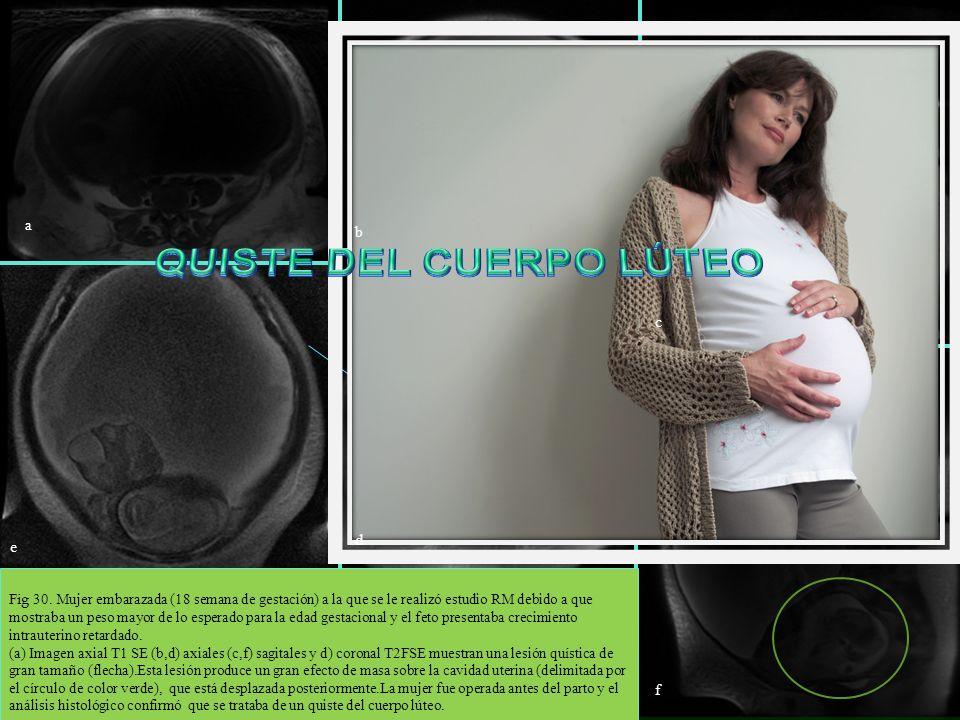 Fig 30. Mujer embarazada (18 semana de gestación) a la que se le realizó estudio RM debido a que mostraba un peso mayor de lo esperado para la edad ge