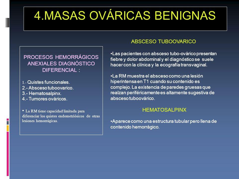 PROCESOS HEMORRÁGICOS ANEXIALES DIAGNÓSTICO DIFERENCIAL : 1.- Quistes funcionales. 2.- Absceso tuboovarico. 3.- Hematosalpinx. 4.- Tumores ováricos. L