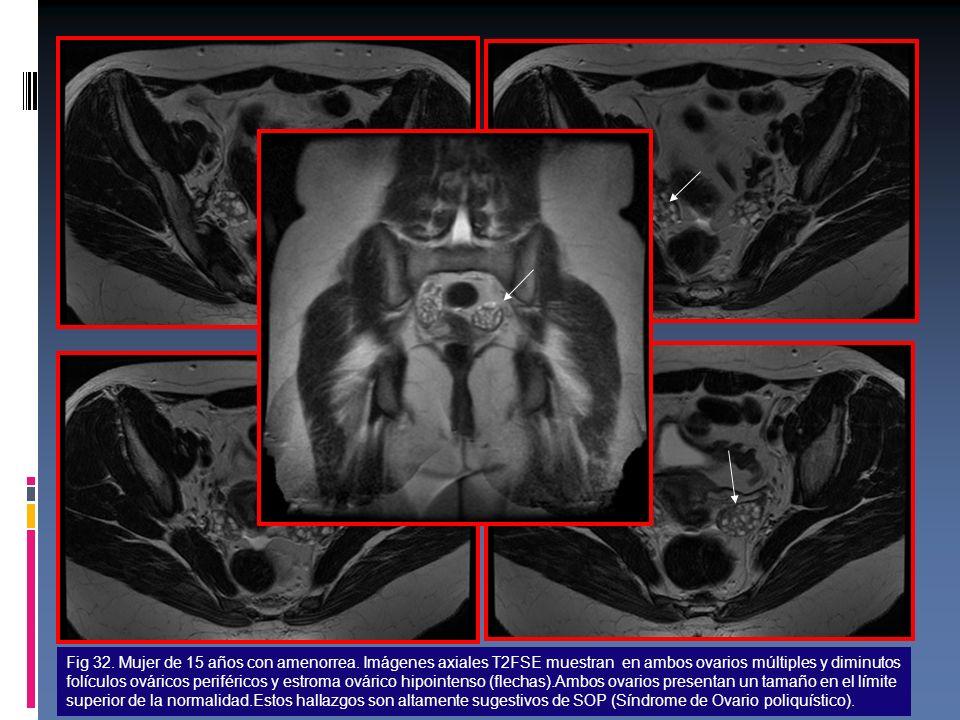 Fig 32. Mujer de 15 años con amenorrea. Imágenes axiales T2FSE muestran en ambos ovarios múltiples y diminutos folículos ováricos periféricos y estrom