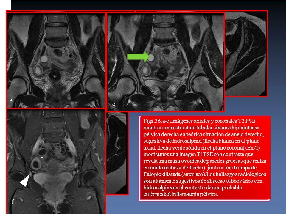 Figs.36.a-e.Imágenes axiales y coronales T2 FSE muetran una estructura tubular sinuosa hiperintensa pélvica derecha en teórica situación de anejo dere