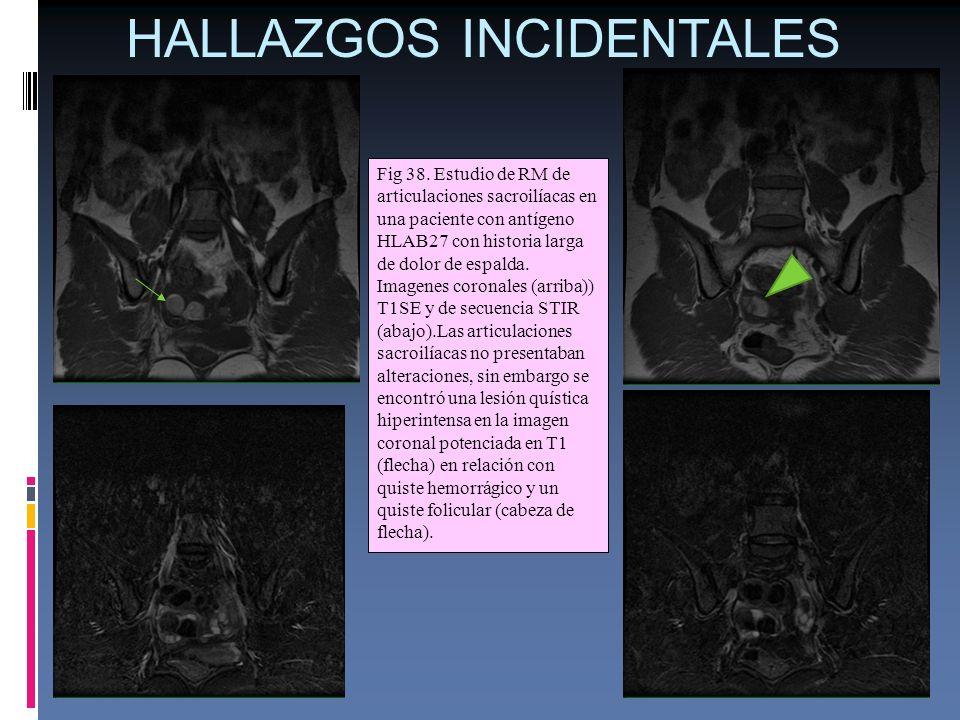 HALLAZGOS INCIDENTALES Fig 38. Estudio de RM de articulaciones sacroilíacas en una paciente con antígeno HLAB27 con historia larga de dolor de espalda