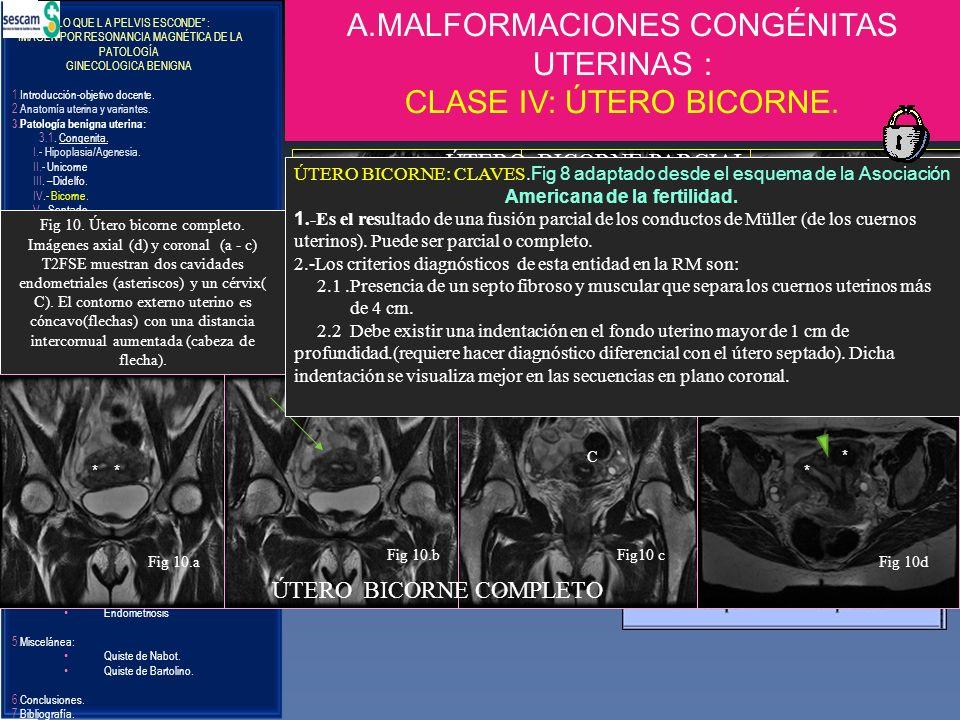 LO QUE L A PELVIS ESCONDE : IMAGEN POR RESONANCIA MAGNÉTICA DE LA PATOLOGÍA GINECOLOGICA BENIGNA 1.Introducción-objetivo docente. 2.Anatomía uterina y