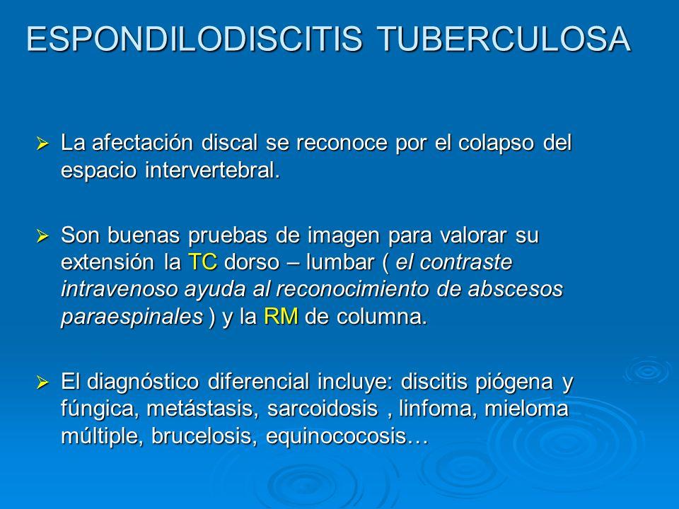 ESPONDILODISCITIS TUBERCULOSA La afectación discal se reconoce por el colapso del espacio intervertebral. La afectación discal se reconoce por el cola