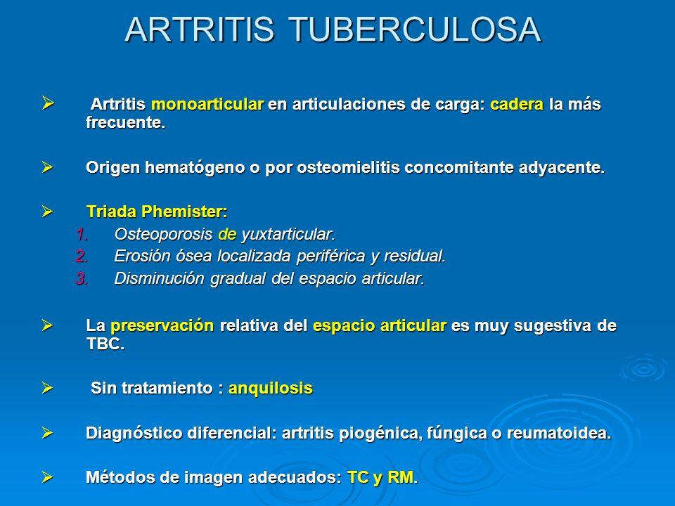 ARTRITIS TUBERCULOSA Artritis monoarticular en articulaciones de carga: cadera la más frecuente. Artritis monoarticular en articulaciones de carga: ca