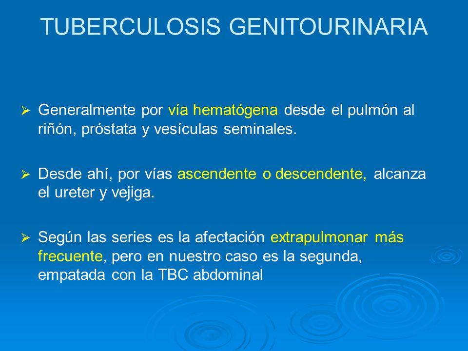 TUBERCULOSIS GENITOURINARIA Generalmente por vía hematógena desde el pulmón al riñón, próstata y vesículas seminales. Desde ahí, por vías ascendente o