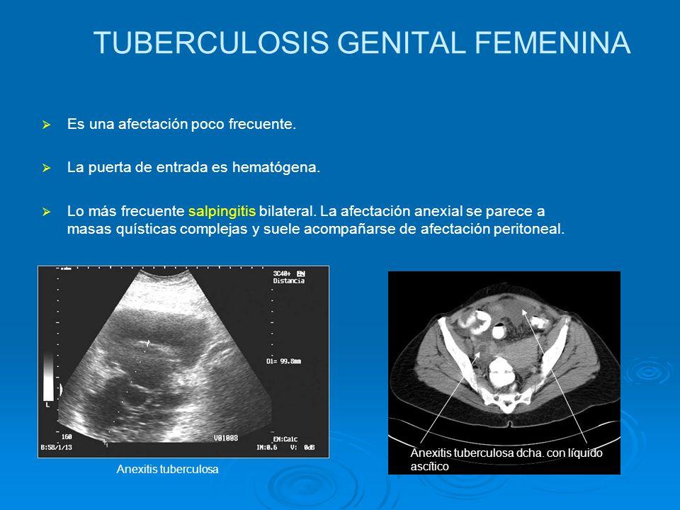 TUBERCULOSIS GENITAL FEMENINA Es una afectación poco frecuente. La puerta de entrada es hematógena. Lo más frecuente salpingitis bilateral. La afectac