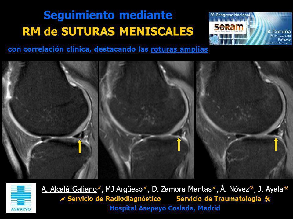 A. Alcalá-Galiano, MJ Argüeso, D. Zamora Mantas, Á. Nóvez, J. Ayala Servicio de RadiodiagnósticoServicio de Traumatología Hospital Asepeyo Coslada, Ma