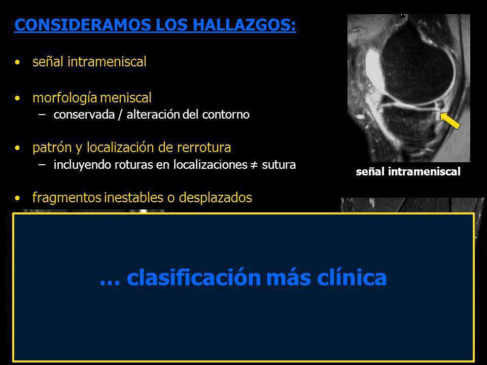 CONSIDERAMOS LOS HALLAZGOS: señal intrameniscal morfología meniscal –conservada / alteración del contorno patrón y localización de rerrotura –incluyen