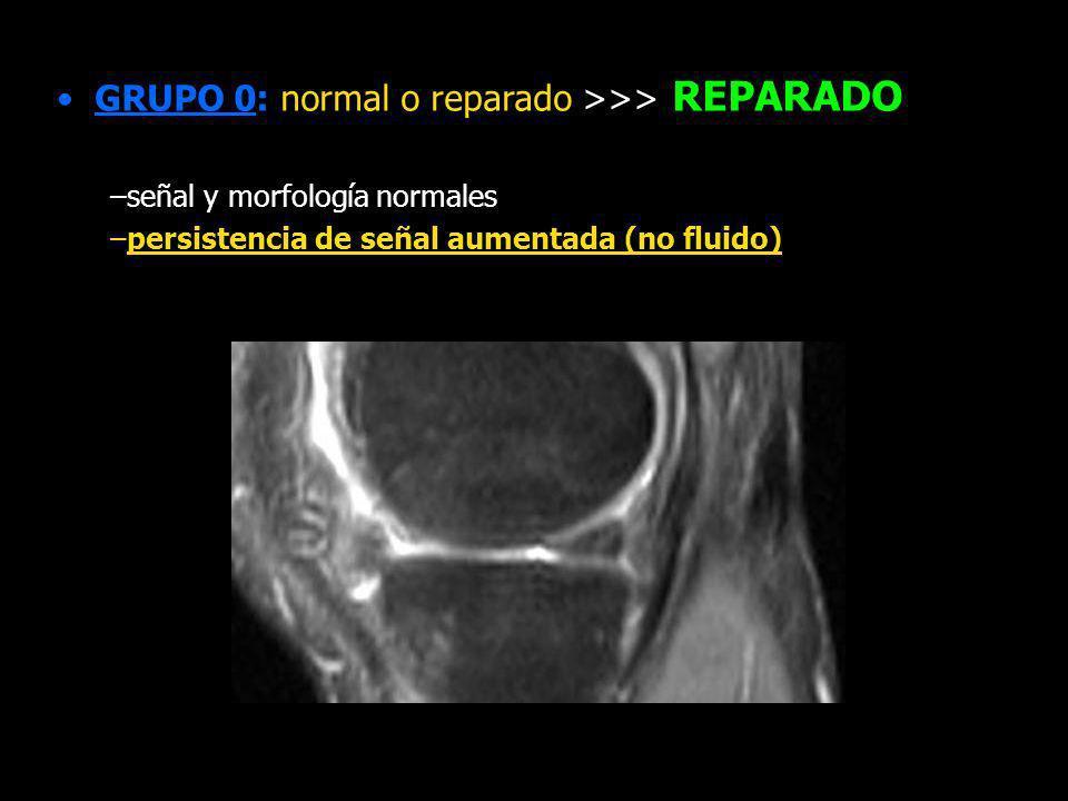 GRUPO 0: normal o reparado >>> REPARADO –señal y morfología normales –persistencia de señal aumentada (no fluido) 4 meses 8 meses rotura original alt.