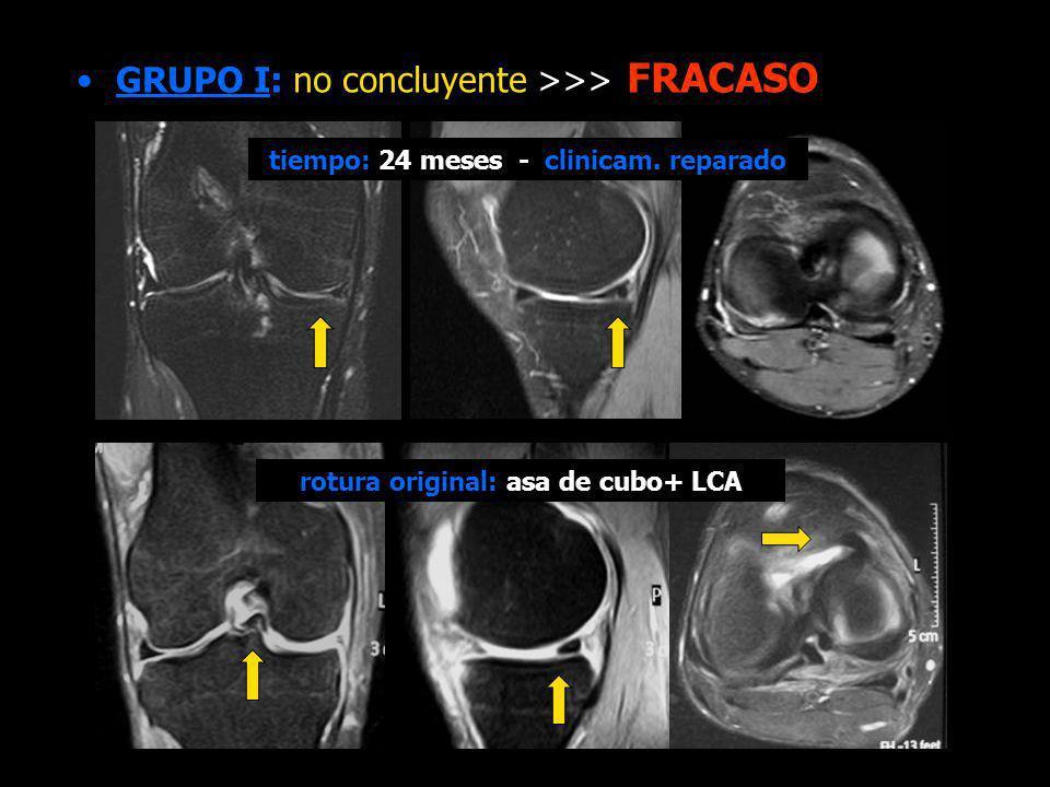 GRUPO I: no concluyente >>> FRACASO rotura original: asa de cubo+ LCA tiempo: 24 meses - clinicam. reparado