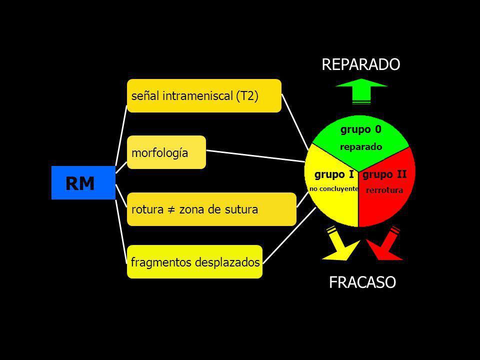 RM señal intrameniscal (T2) morfología fragmentos desplazados rotura zona de sutura grupo 0 reparado grupo I no concluyente grupo II rerrotura REPARAD