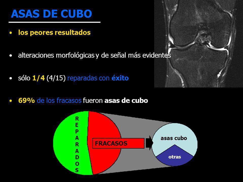 ASAS DE CUBO R F los peores resultados alteraciones morfológicas y de señal más evidentes sólo 1/4 (4/15) reparadas con éxito 69% de los fracasos fueron asas de cubo REPARADOSREPARADOS FRACASOS asas cubo otras